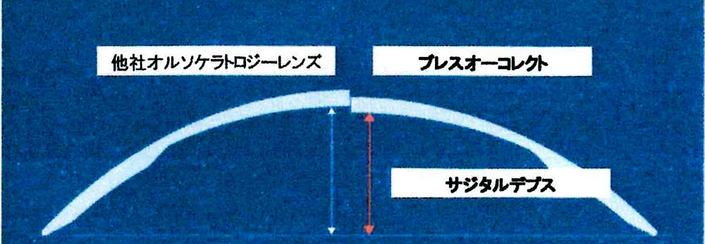 オルソケラトロジーレンズのデザイン設計